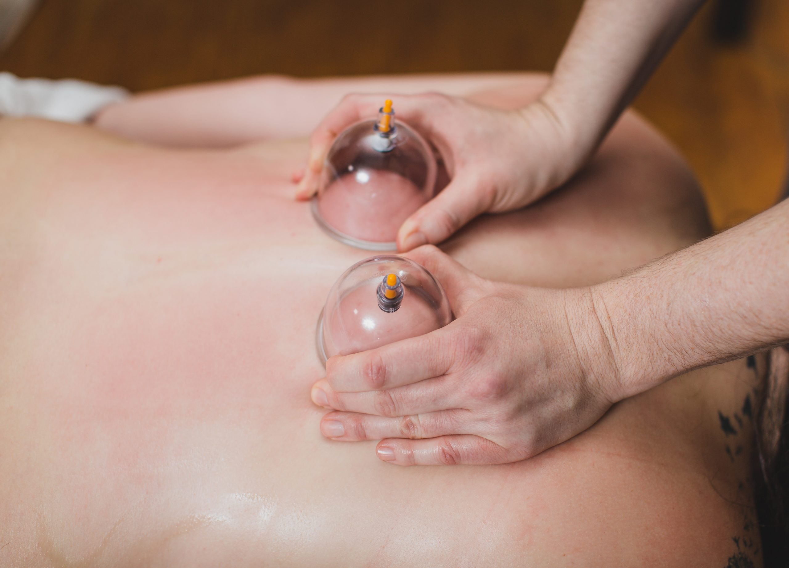 Cupping therapy Michigan