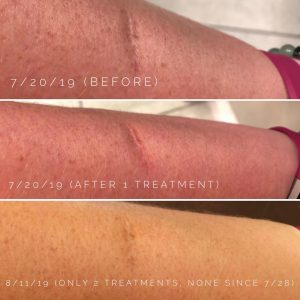 scar tissue treatment troy michigan